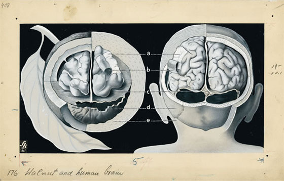 Walnut and human brain